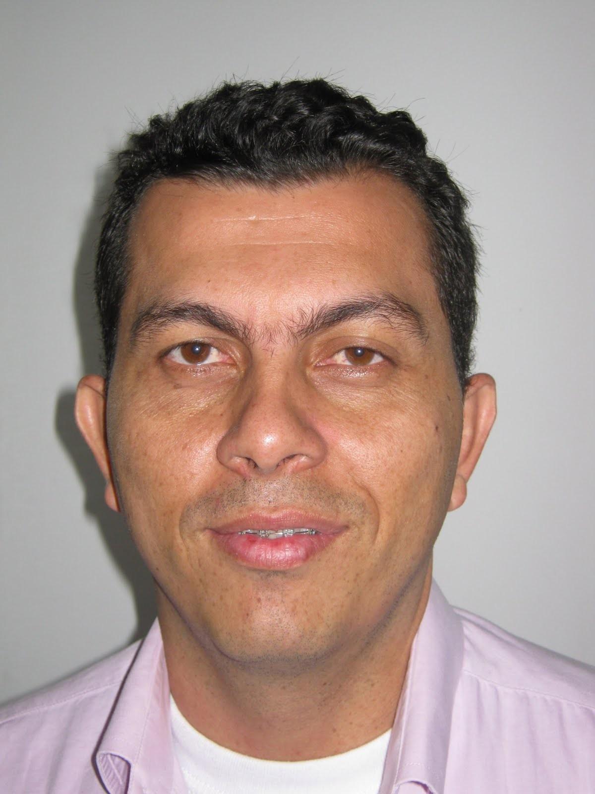 Carlos Edward, busca aval del CD, pero sigue siendo de la U