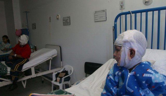 8 quemados con pólvora en Tolima, entre ellos 2 niños, el fin de semana